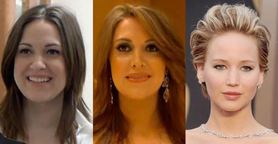 pessoas-fizeram-plasticas-parecido-celebridades-1