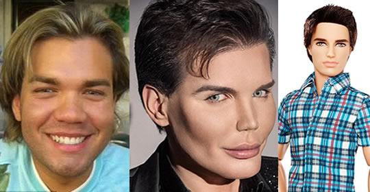 pessoas-fizeram-plasticas-parecido-celebridades-6