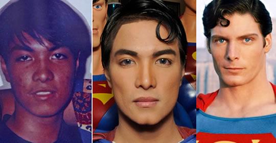 pessoas-fizeram-plasticas-parecido-celebridades-7