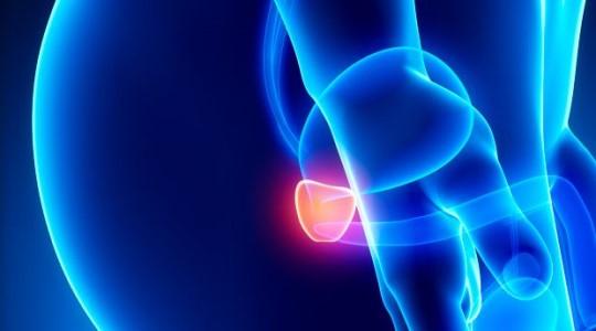 10 informações sobre o câncer de próstata
